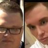 Егор Холявин: Кен почти готов, фото до и после пластики