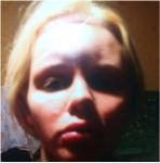 Катя Самбука фото после избиения