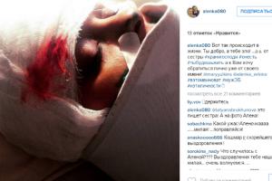 Пост и фото Алены Волковой в Инстаграме о якобы имевшем место избиении