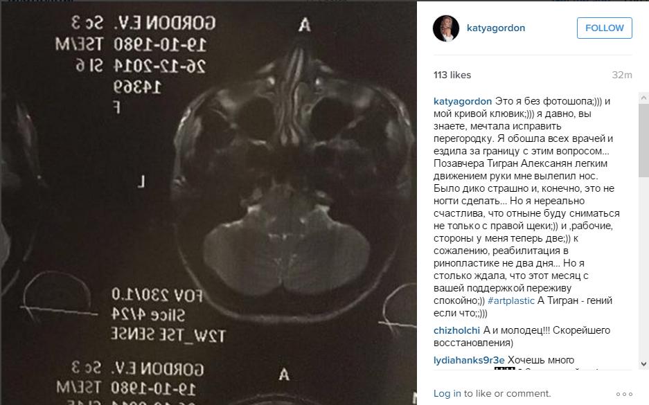 Катя Гордон: пост в Инстаграме о пластике носа