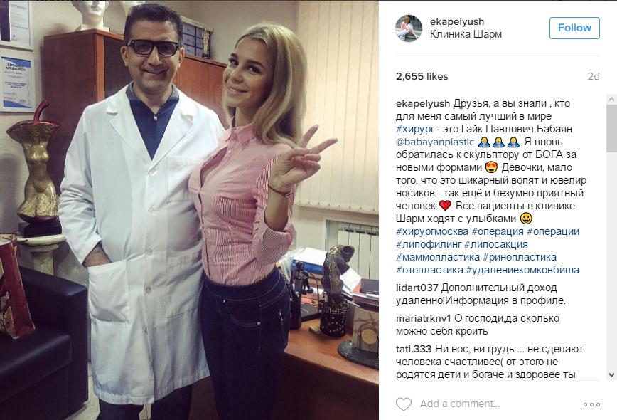Екатерина Колисниченко фото до пластики с хирургом Гайком Бабаяном, пост в Инстаграме, октябрь 2016