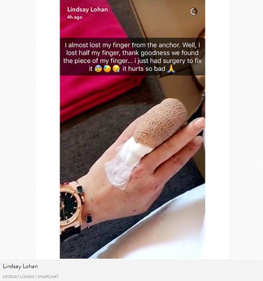 Фото травмированного пальца Линдси Лохан