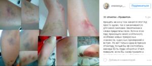 Анастасия Сова-Егорова : фото синяков и пост в Инстаграме об избиении