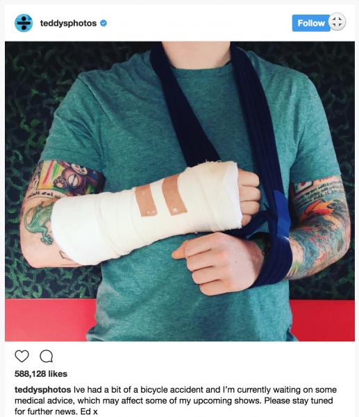 Пост Эда Ширана о травме руки и фото в гипсе